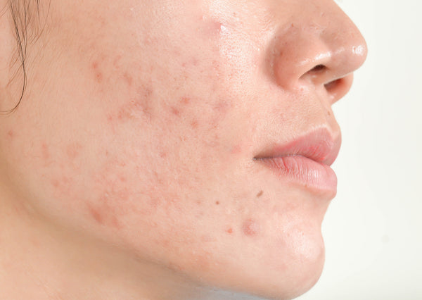 Effective Chinese Herbal Herb Remedy Remedies Acne