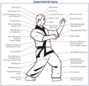 Using Chinese Martial Arts Herbal Trauma Formulas (Part 1)