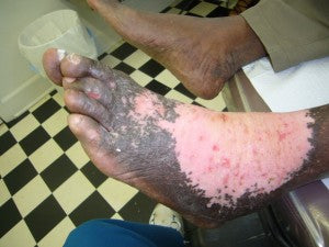 Lost Skin Pigment - Scars from Fire Ant bites