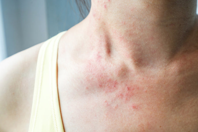 What's Keto Rash? And 5 Ways to Get Rid of It