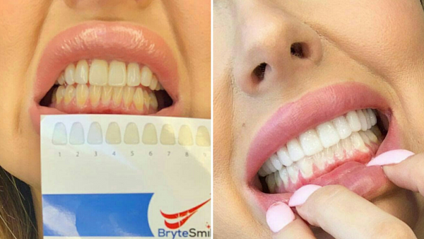 before and after effect of Brytesmile teeth whitening strips