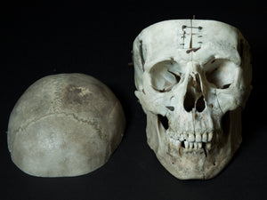 Human Skull with Articulations (15-254-G01)