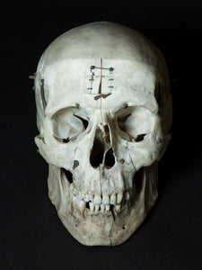 Human Skull with Articulations (G01)