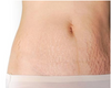 Dermapen for Stretch Marks Therapy