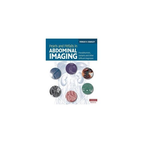 Pearls and Pitfalls in Abdominal Imaging: Pseudotumors, Variants and Other Difficult Diagnoses (Cambridge Medicine (Hardcover))