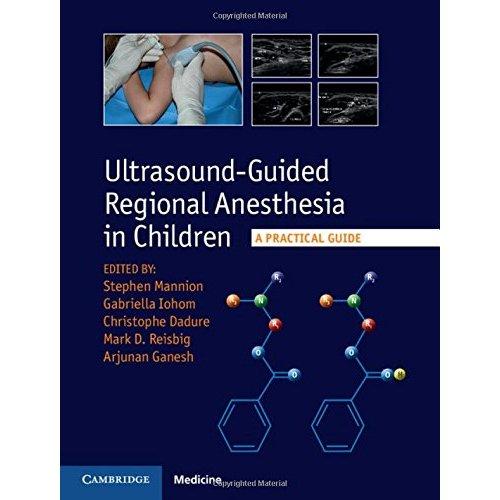 Ultrasound-Guided Regional Anesthesia in Children: A Practical Guide