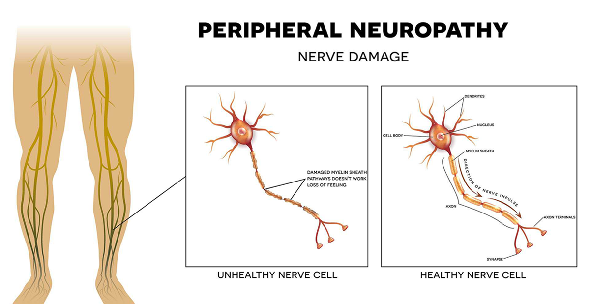 WHAT IS PERIPHERAL NEUROPATHY (Nerve Damage)? | Heal My Nerves