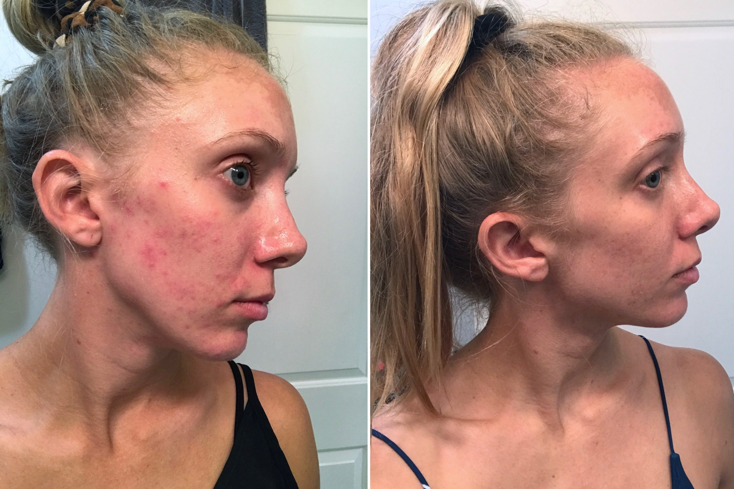 Acne Fungal Acne Or Dermatitis How I Cured The Worst Skin Of My Life A Short Engagement