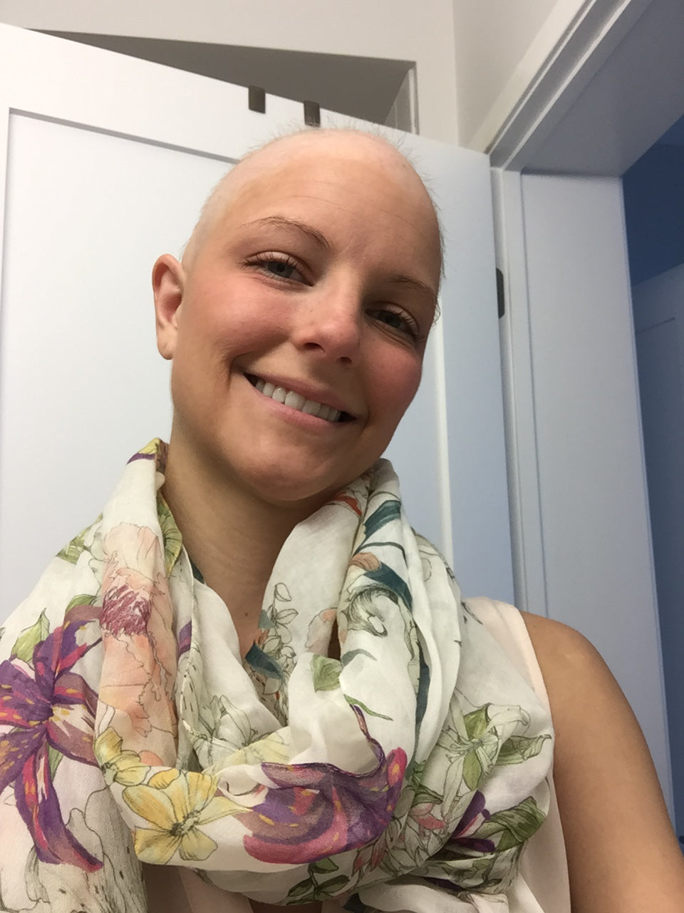 Lauren after she lost her hair during treatment