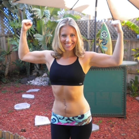 Fawn shows off her surgery scar on her abdoment after surgery for colon cancer