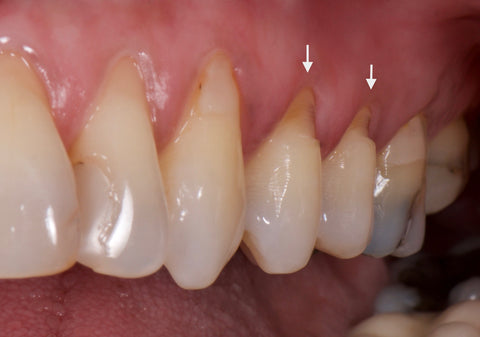 Teeth grinding leading to abfraction (triangular gums), custom night guard, All Star Teeth