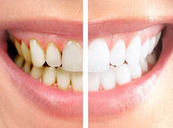What Should You Expect After Your Teeth Whitening Procedure?