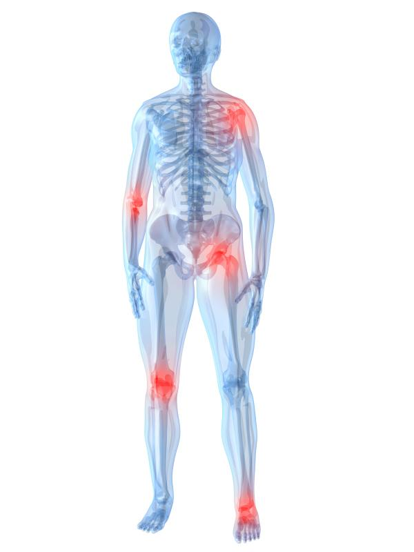 Generational Joint Pain – muscle + bone nyc