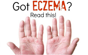 Top Three Tips To Stop Eczema In Kids And Adults