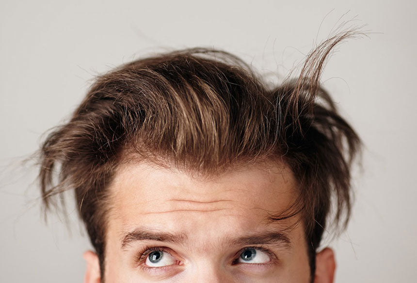 How to stop hair loss with Minoxidil