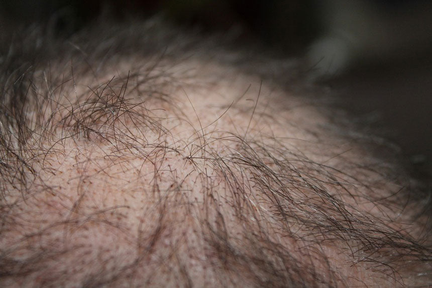 Hair transplant for thinning hair