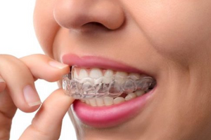 Replacement removable retainer (for existing patients)