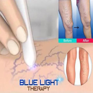 Medical Blue Light Therapy Laser Treatment Pen | Freaky Inventions