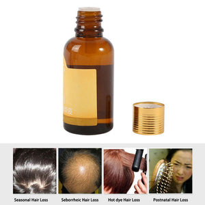 Natural Fast Hair Growth Solution Essence Liquid Hair Loss Type 30ml Regrowth Pilatory New | Freaky Inventions