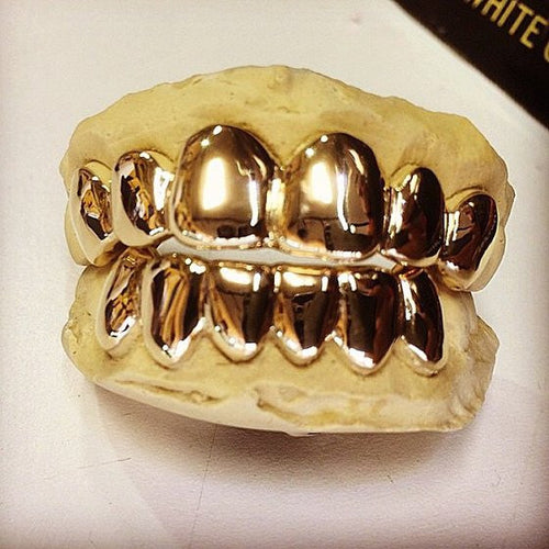 CUSTOM GOLD GRILLZ