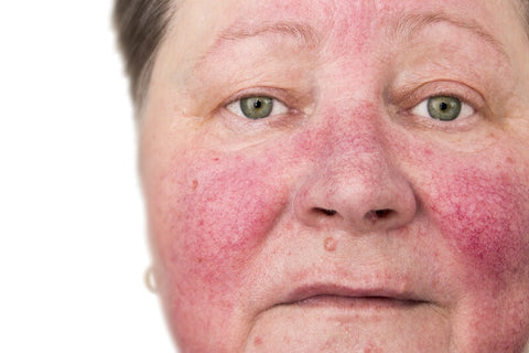 elderly woman with skin issues