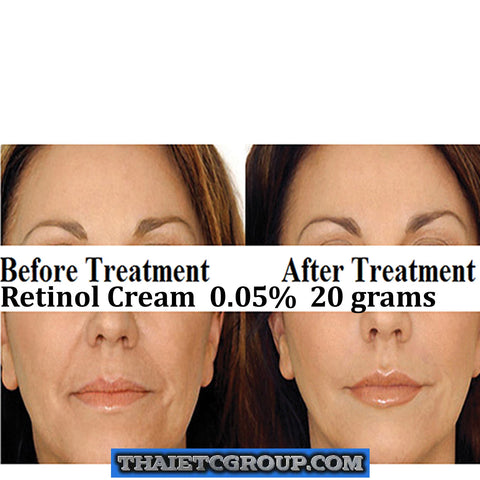 1 x 20g 0.05% STRONG RETINOL VITAMIN A CREAM Retin ol Wrinkles Acne Anti Ageing