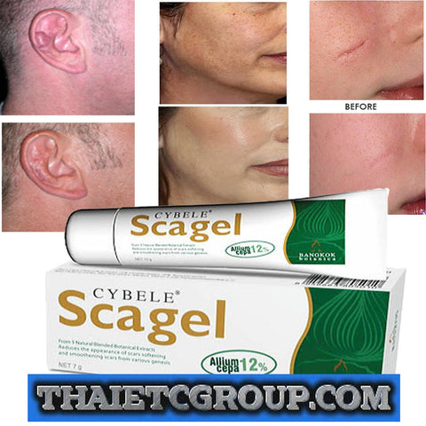 SCAGEL Scar gel reduce post surgery keloid stretch marks acne burns scars CYBELE