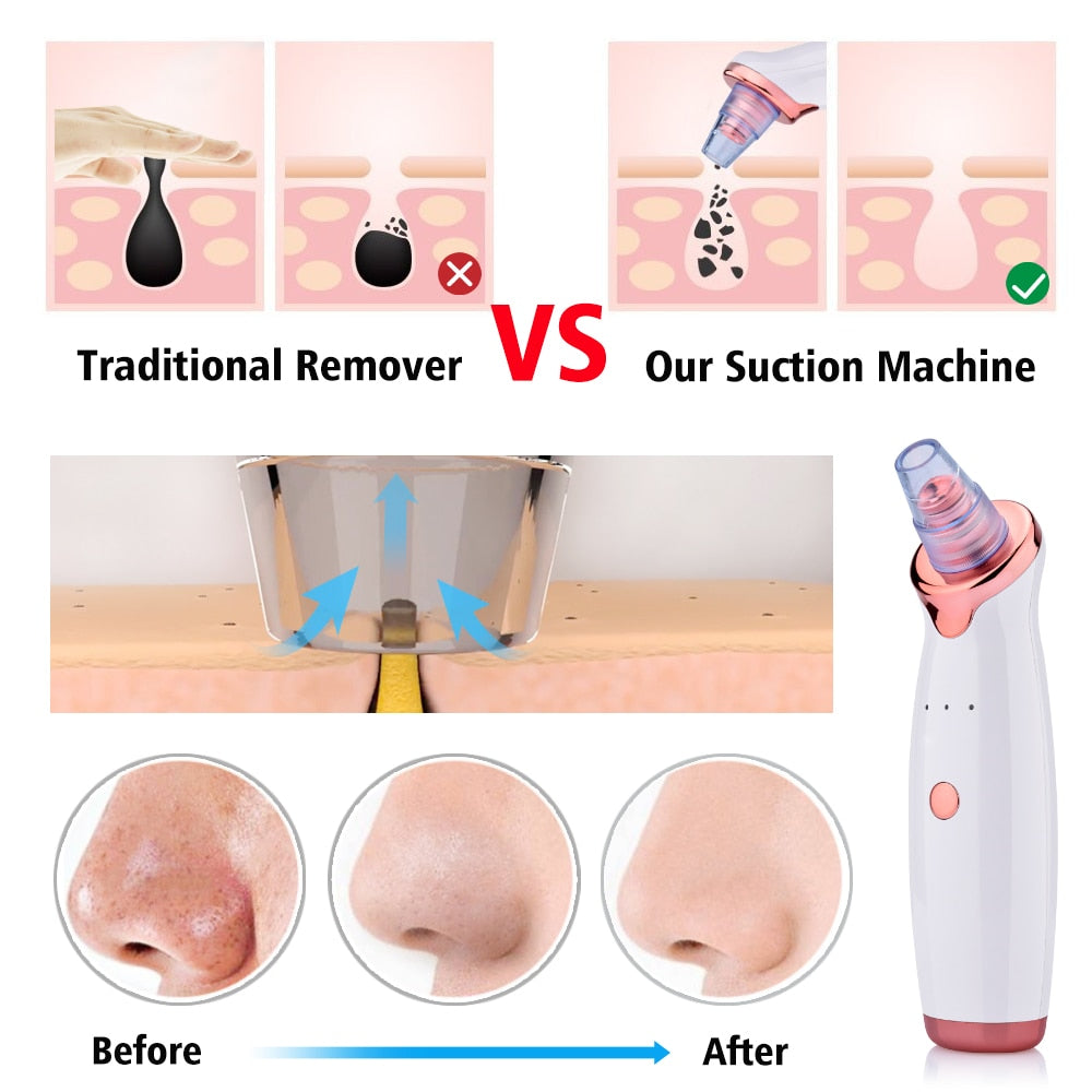 Blackhead Removing Vacuum Tool