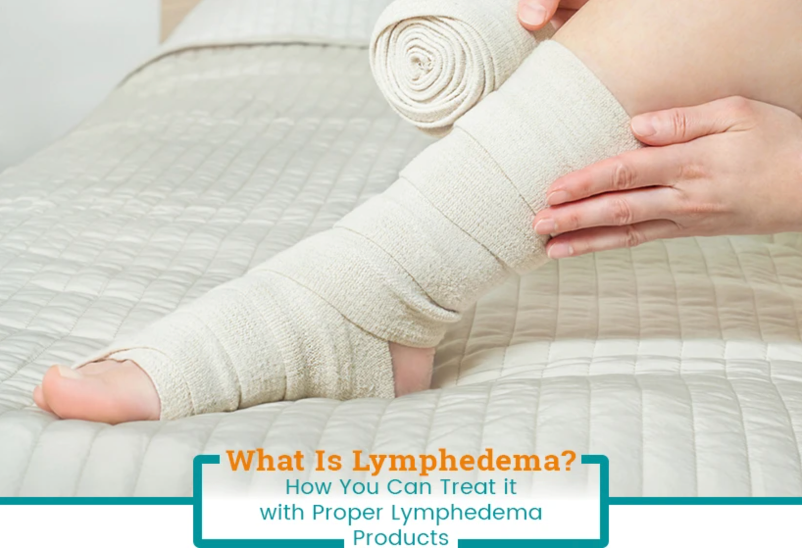What Is Lymphedema? How You Can Treat it with Proper Lymphedema Products