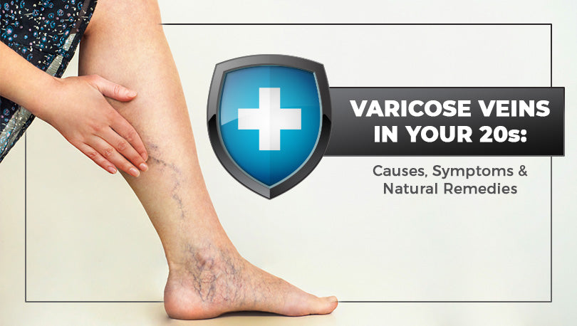 Varicose Veins in Your 20s: Causes, Symptoms & Natural Remedies