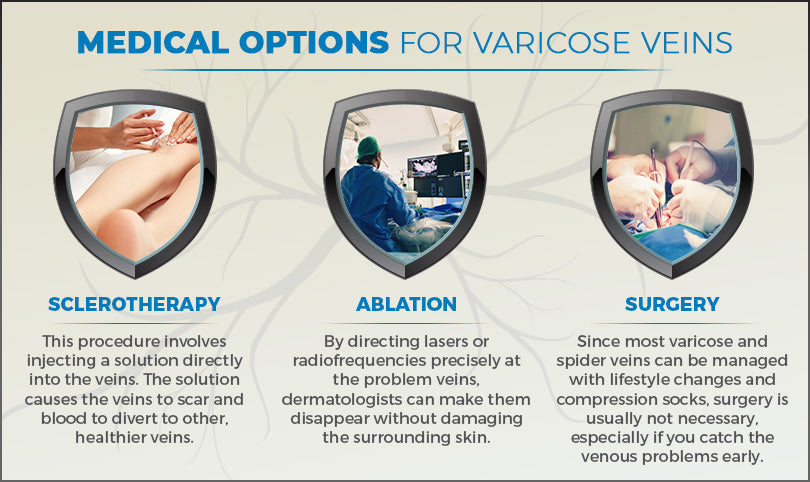 medical options varicose veins