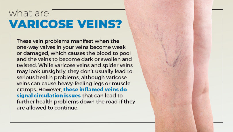 How to Treat Varicose Veins in Your 20s - LoungeDoctor com – Lounge