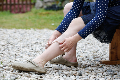 painful varicose spider veins