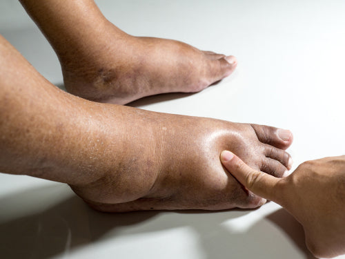 testing swollen diabetic feet