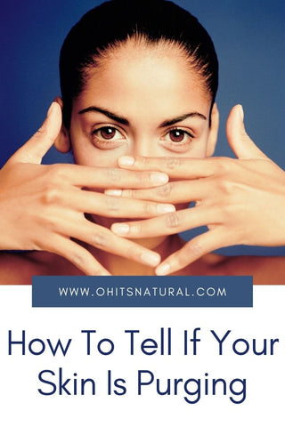 How To Tell If Your Skin Is Purging