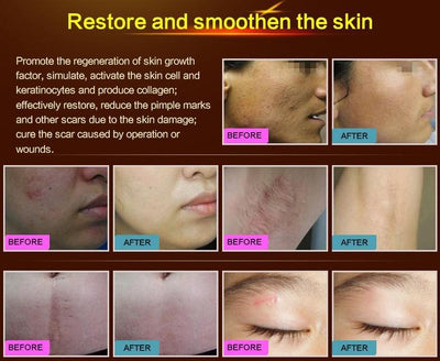 LANBENA Natural Stretch Marks and Scar Removal Gel
