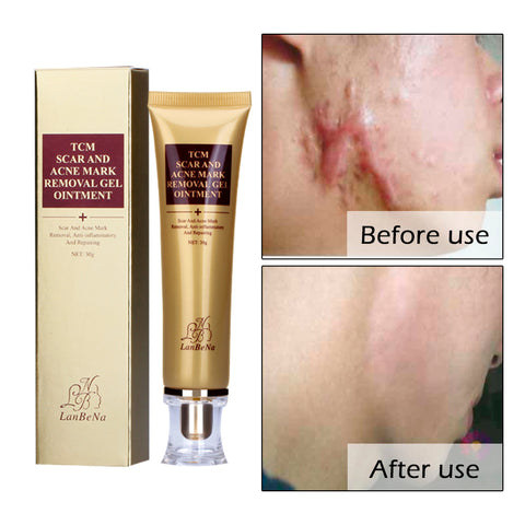 Wonder Scar and Acne removal cream