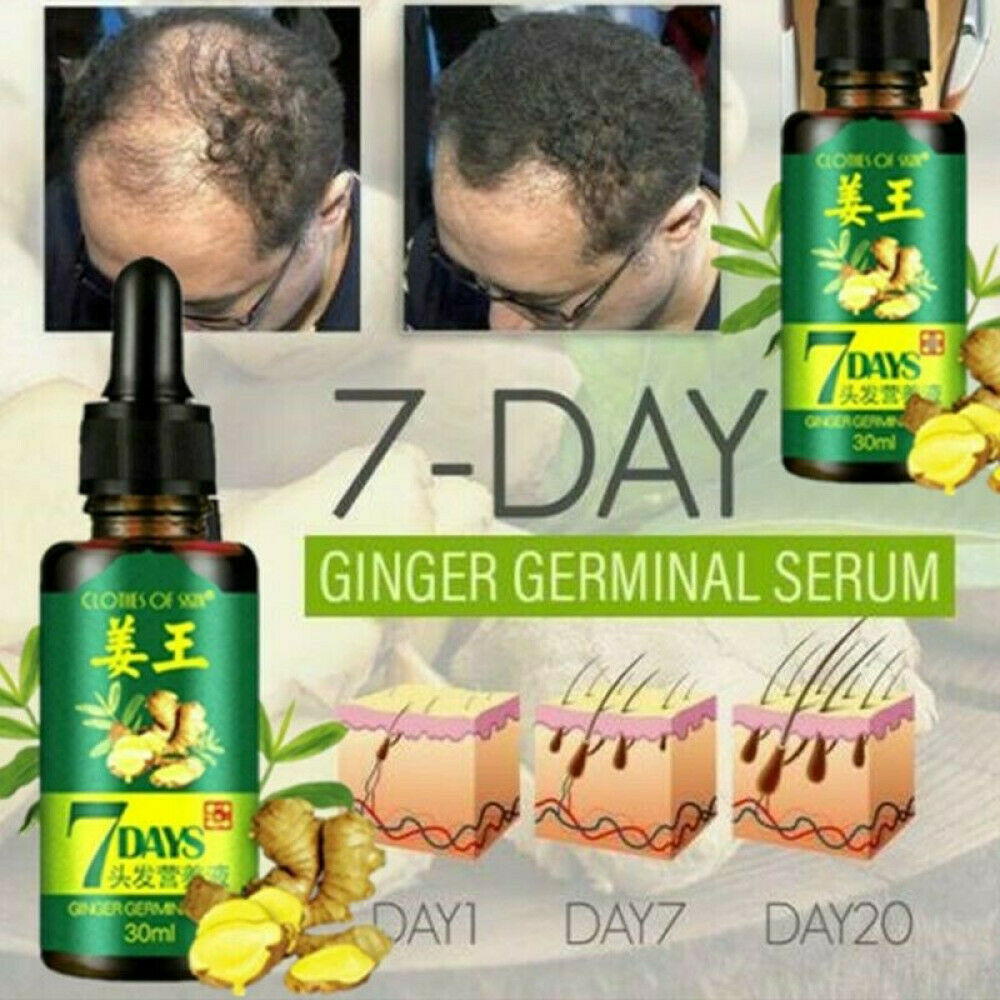 7 DAYS GINGER ULTIMATE HAIR GROWER