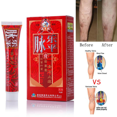 Image of Varicose Veins Treatment Cream Pack