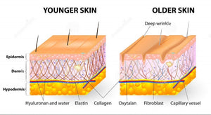 What Causes Damage To Skin Collagen?