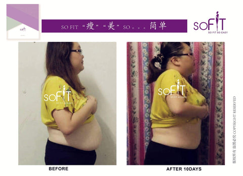 SoFit 10-day user, tummy gone