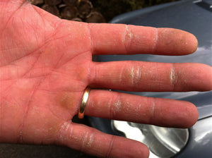 Mechanic's hand with dry cracked skin