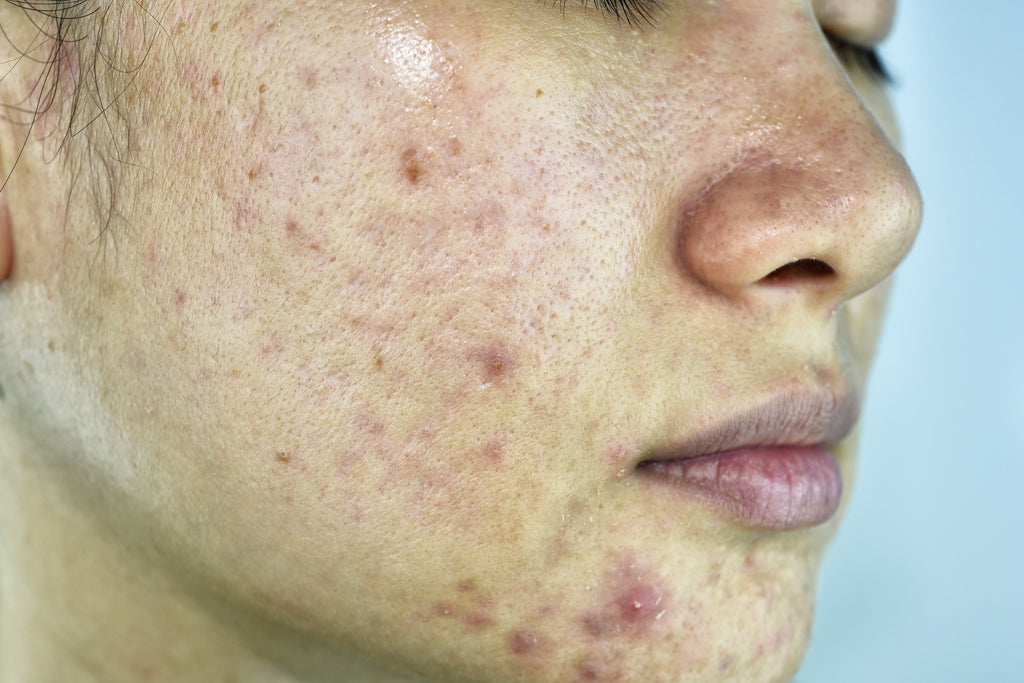 Acne Types and Acne Causes