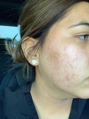girl after acne and scars with improved skin