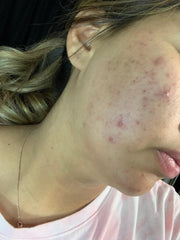 girl with break out and scarring