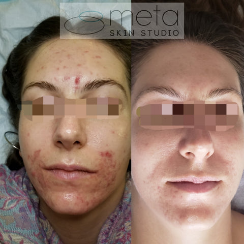 Clear Skin Program Consultation