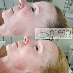 Skin Transformation Facial female before and after
