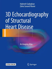 3D Echocardiography of Structural Heart Disease