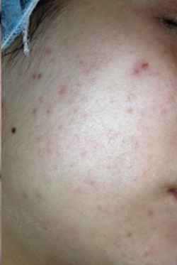 Acne treatment 1 - After