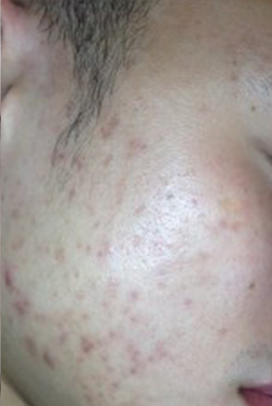 Acne treatment 2 - After